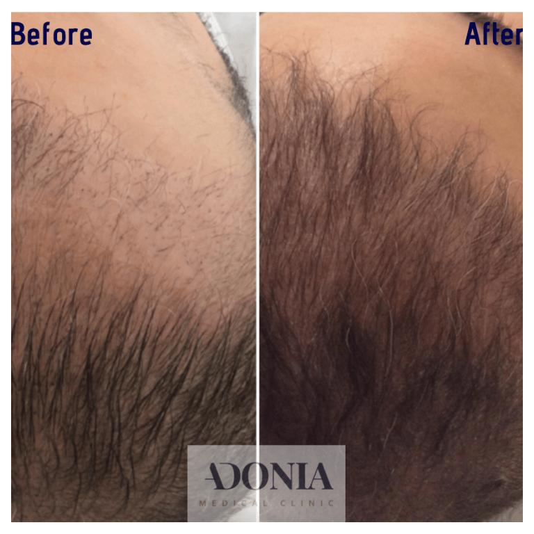 Hair loss treatment 1