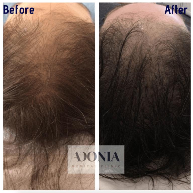 Hair loss treatment 2