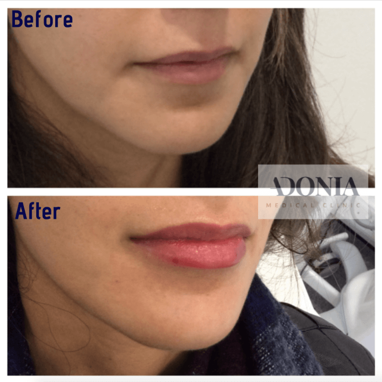 Lip enhancement 1