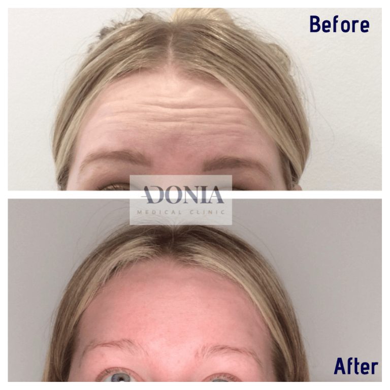 Wrinkle relaxers 1