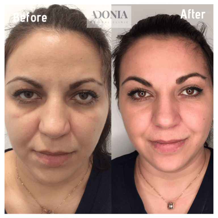 Wrinkle relaxers 2
