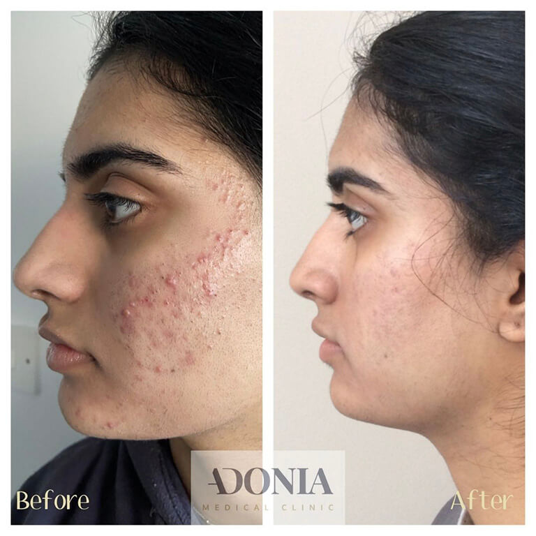 gallery- New. Acne beforeafter (1)